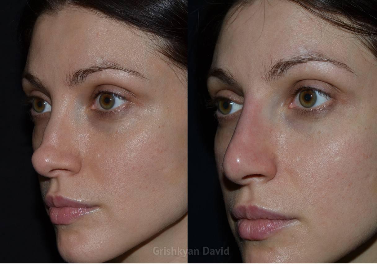 Ринопластика носа последствия после операции | ринопластика носа