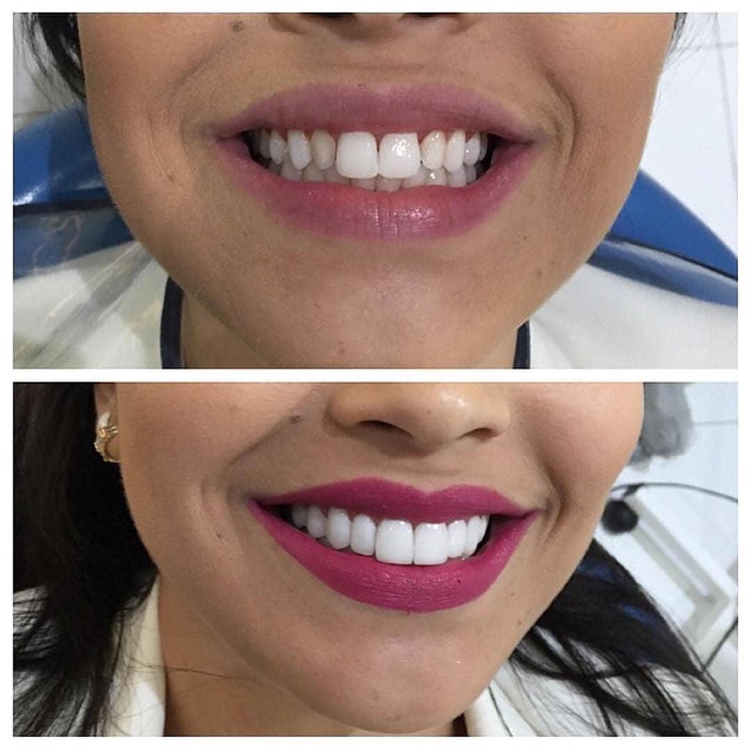 Композитные виниры на зубы - цена, фото до и после реставрации, установка