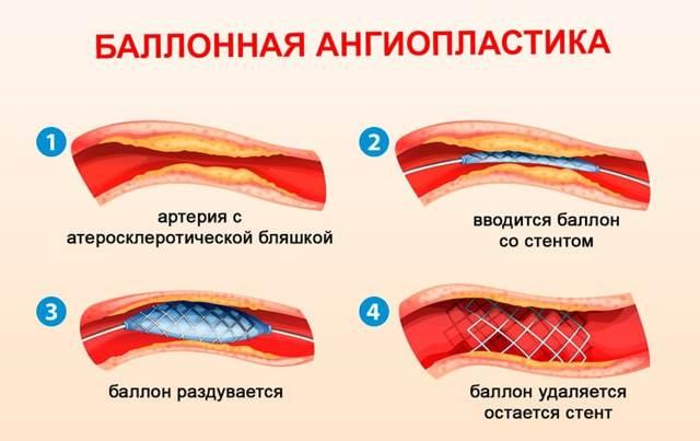 Реноваскулярная гипертензия: симптомы, диагностика, лечение и возможные осложнения