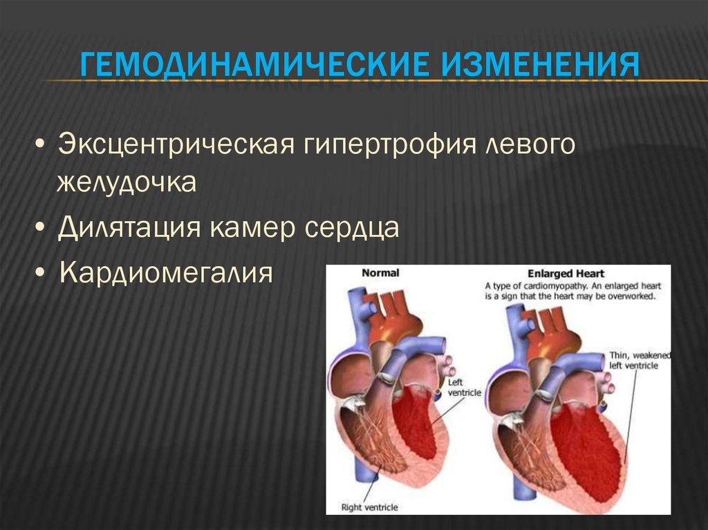 Ишемическая кардиомиопатия – что это такое, лечение