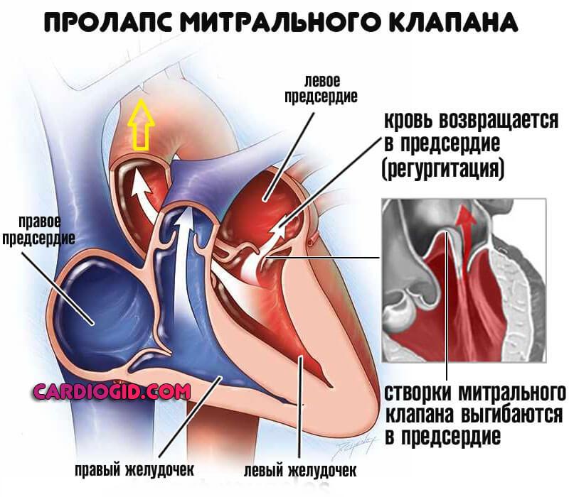 Чем опасен пролапс митрального клапана 1 степени - здоров.сердцем