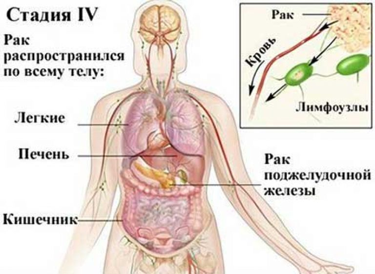 Метастазы опухоли: причины, симптомы и лечение в статье онколога пылев а. л.