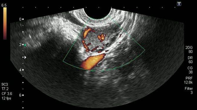 Желтое тело при беременности: размеры по неделям и другие особенности