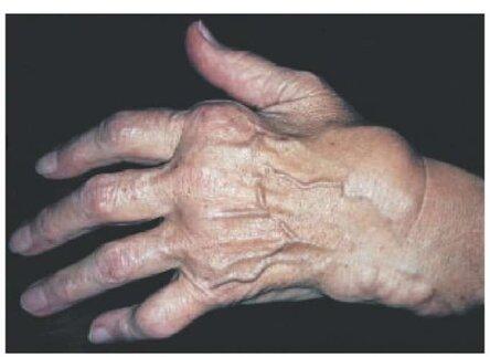Причины, осложнения и последствия ревматоидного артрита