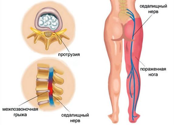 Люмбаго - симптомы и лечение, осложнения, люмбаго с ишиасом