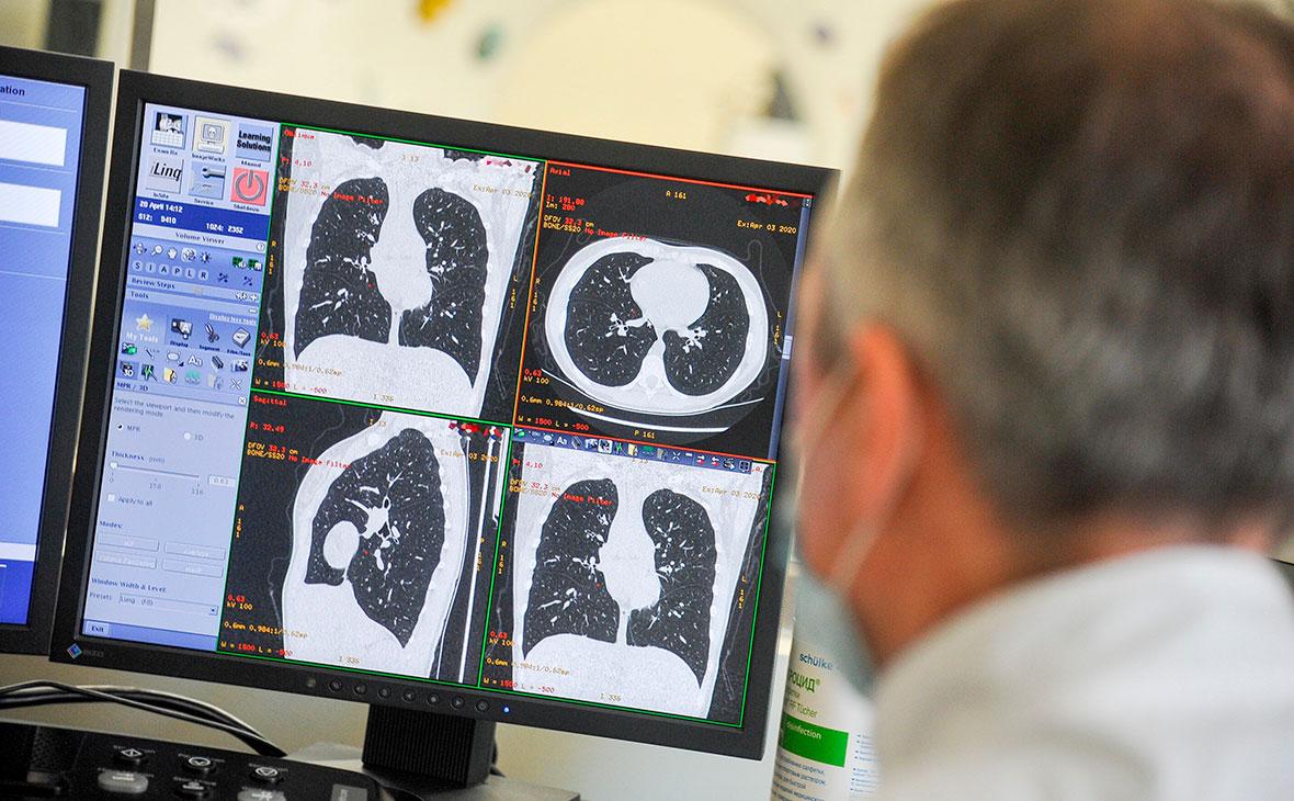 Симптом матового стекла в легких: причины проявления и возможные последствия - медицина - здорово!