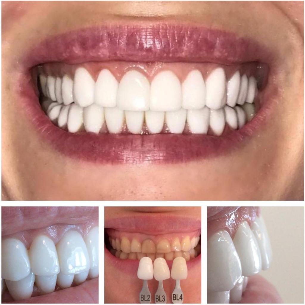 Съемные или временные виниры на зубы: плюсы иминусы