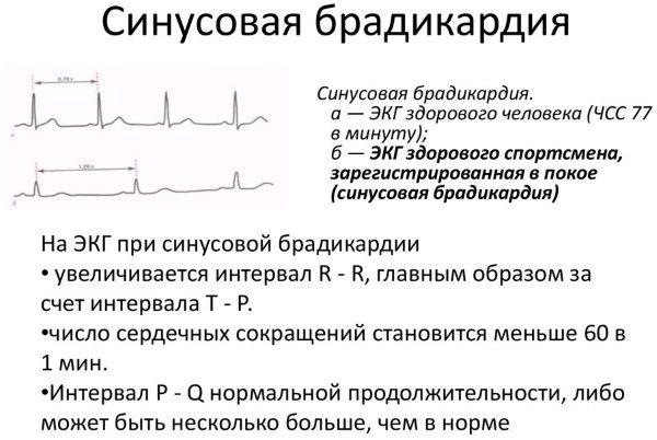 Лечение синусовой брадикардии