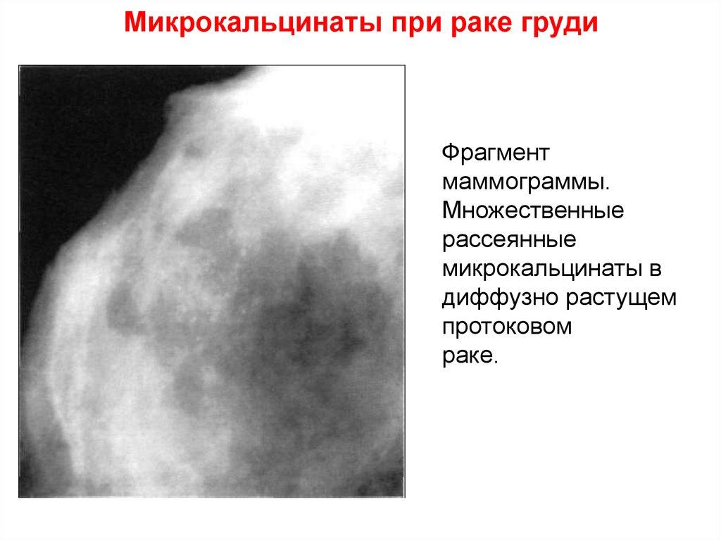 Микрокальцинаты в молочных железах: каков риск онкологии?парашистай микрокальцинаты в молочных железах: каков риск онкологии?