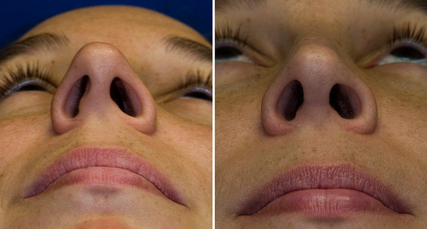 Лазерная септопластика (коррекция, исправление носовой перегородки): что это такое, подготовка, как делают, осложнения, за и против