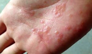 Сифилис. причины, симптомы, современная диагностика и лечение болезни. :: polismed.com