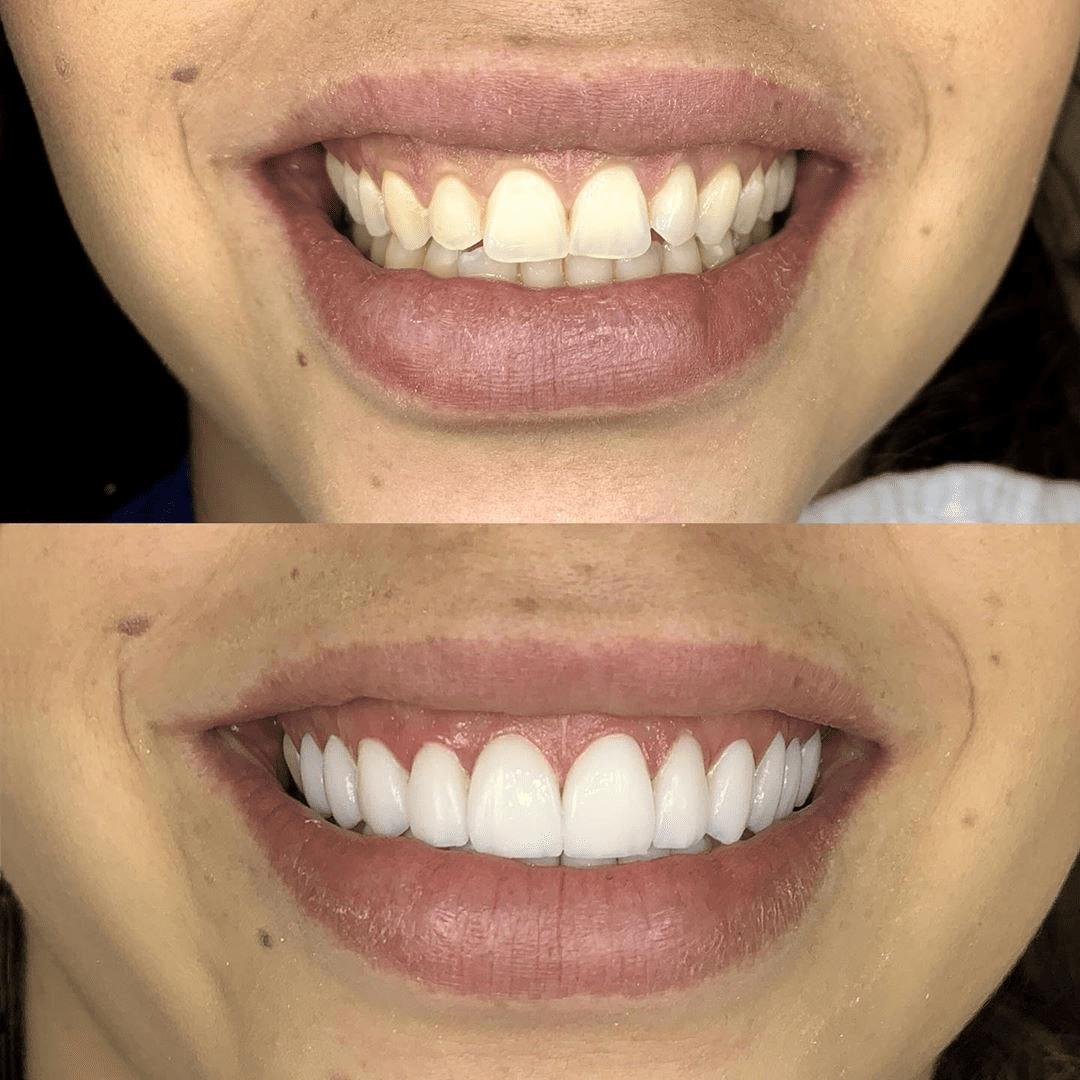 Виниры на зубы: что это такое, фото до и после, установка, срок службы и противопоказания