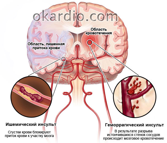 Инсульт ишемический и геморрагический: признаки, последствия, лечение и профилактика