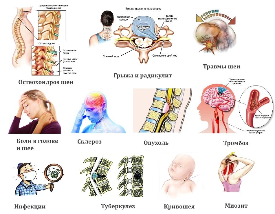 Шейный остеохондроз цервикалгия. хроническая вертеброгенная цервикалгия