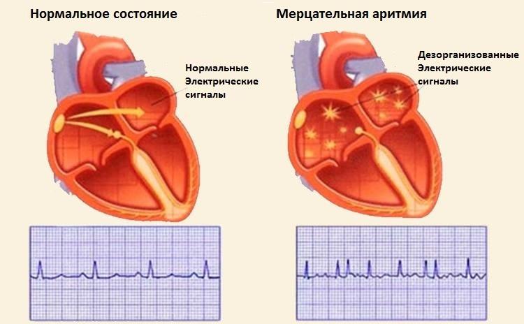 Подготовка и проведение абляции сердца при мерцательной аритмии