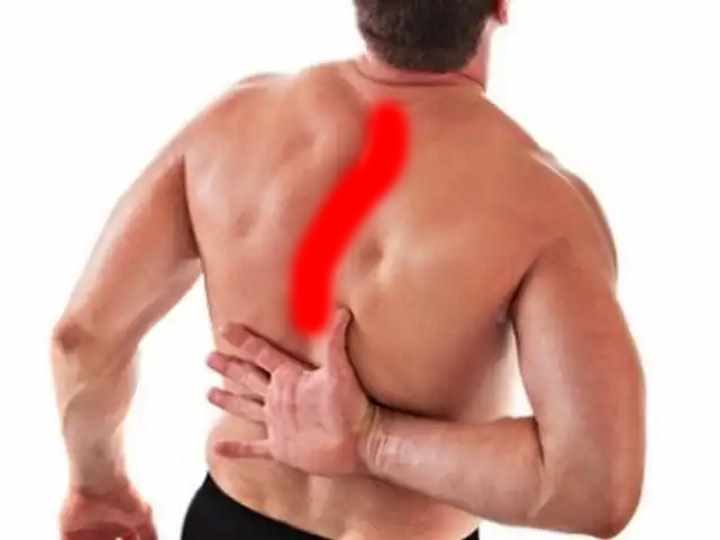 Хронический миозит: симптомы, проявление и лечение