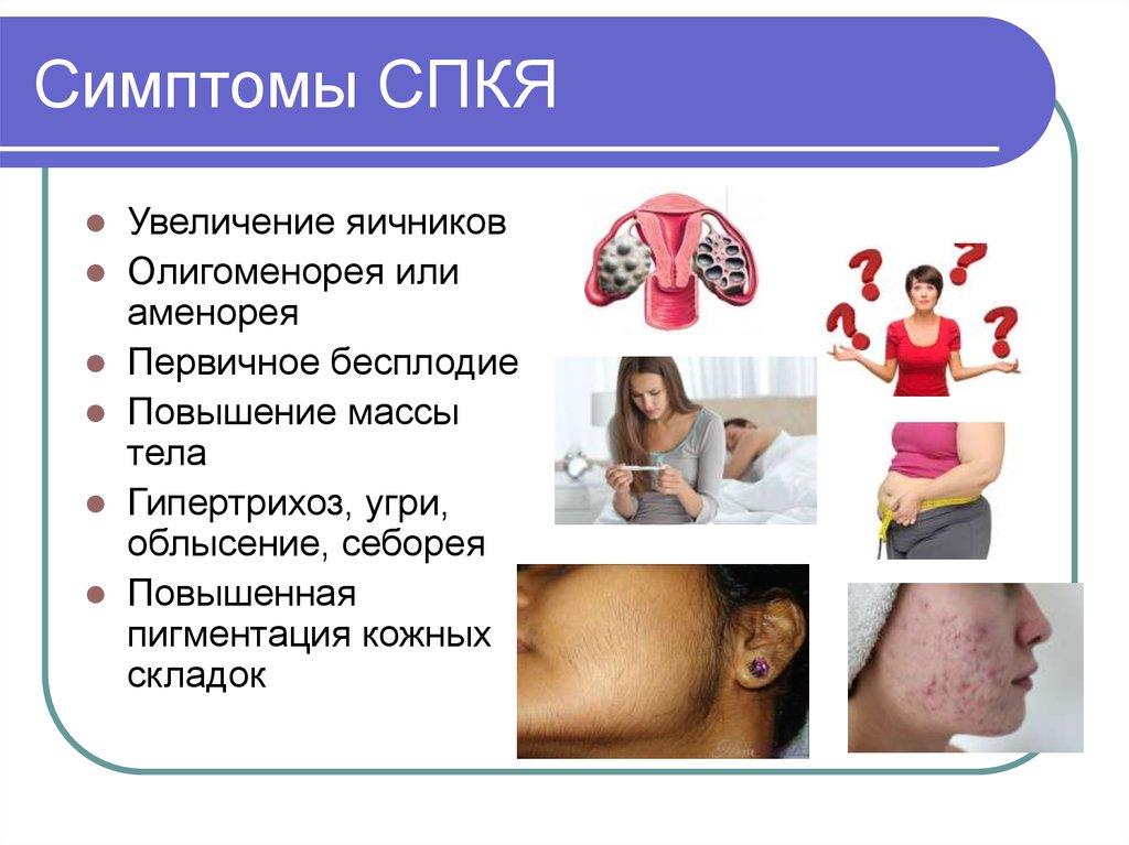 Олигоменорея: что это такое, причины и лечение, особенности первичной и вторичной форм