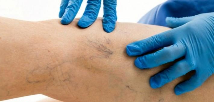 Болезни вен: причины, лечение, последствия | сосудистый центр им. т.топпера