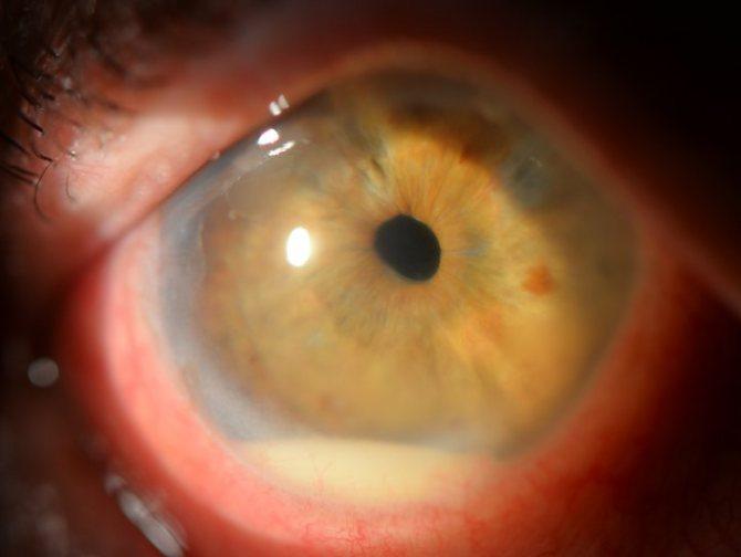 Инъецирование склер. причины инъецирования склер глаз. врожденные заболевания склеры - человек и здоровье