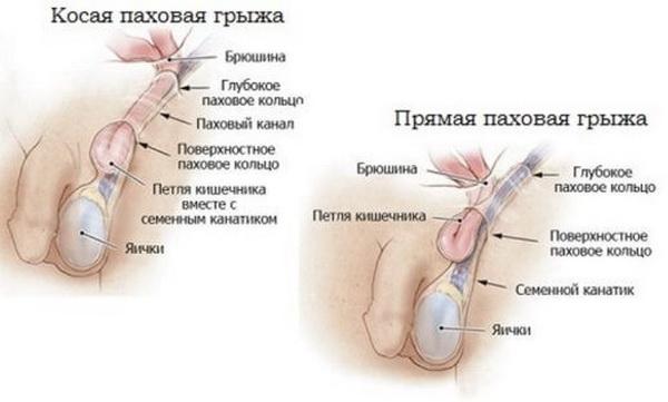 Паховая грыжа: причины, симптомы, лечение