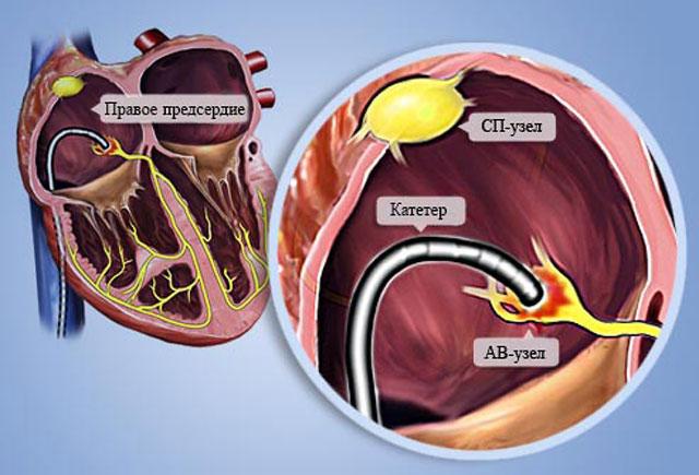 Радиочастотная абляция сердца при аритмии (рча): суть и преимущества процедуры — заболевания сердца