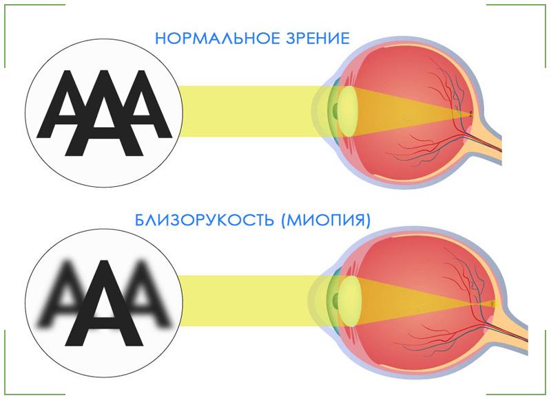 Дальтонизм: признаки, причины, формы и виды цветовой слепоты