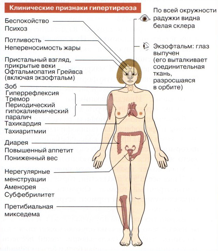 Тиреотоксикоз - что это такое? симптомы и лечение щитовидной железы | здрав-лаб