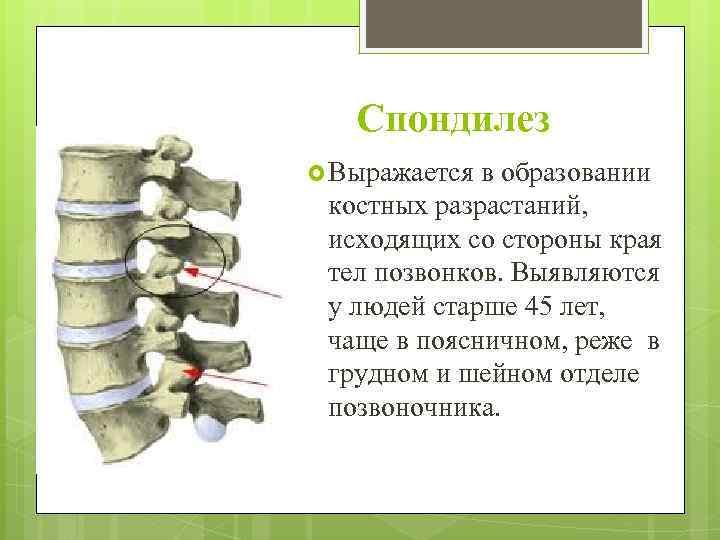 Причины, симптомы и лечение спондилоартроза шейного отдела позвоночника