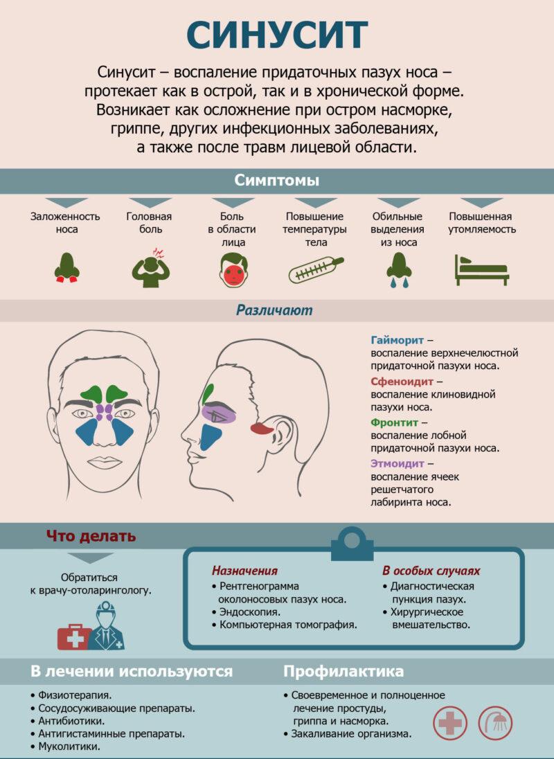 Хронический синусит: симптомы и лечение у взрослых и детей