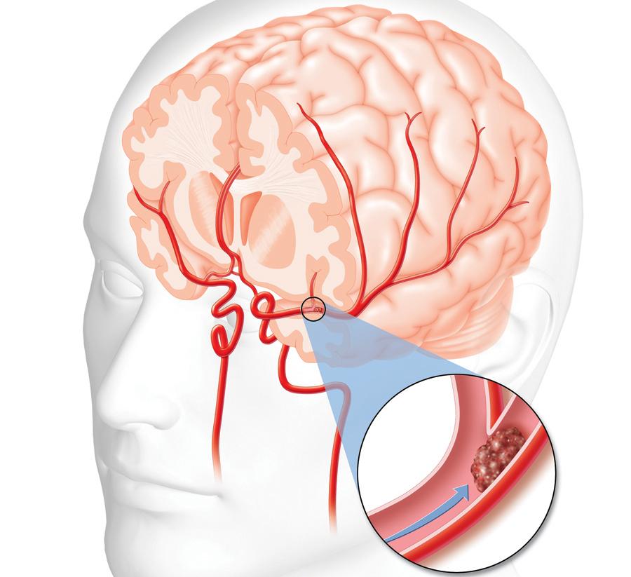 Ишемический инсульт головного мозга: что это такое, код по мкб-10, причины и лечение