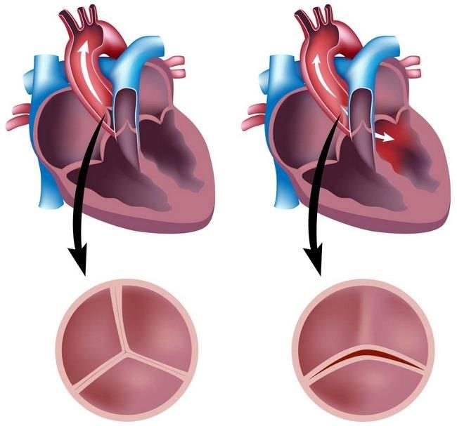 Причины, признаки, диагностика и лечение врожденных пороков сердца
