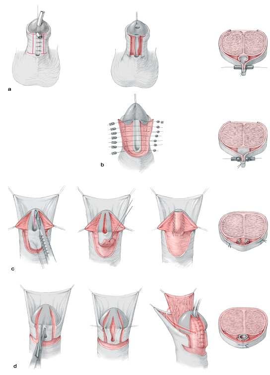 Гипоспадия: 5 форм аномалии и симптомы каждой из них, обзор методов лечения