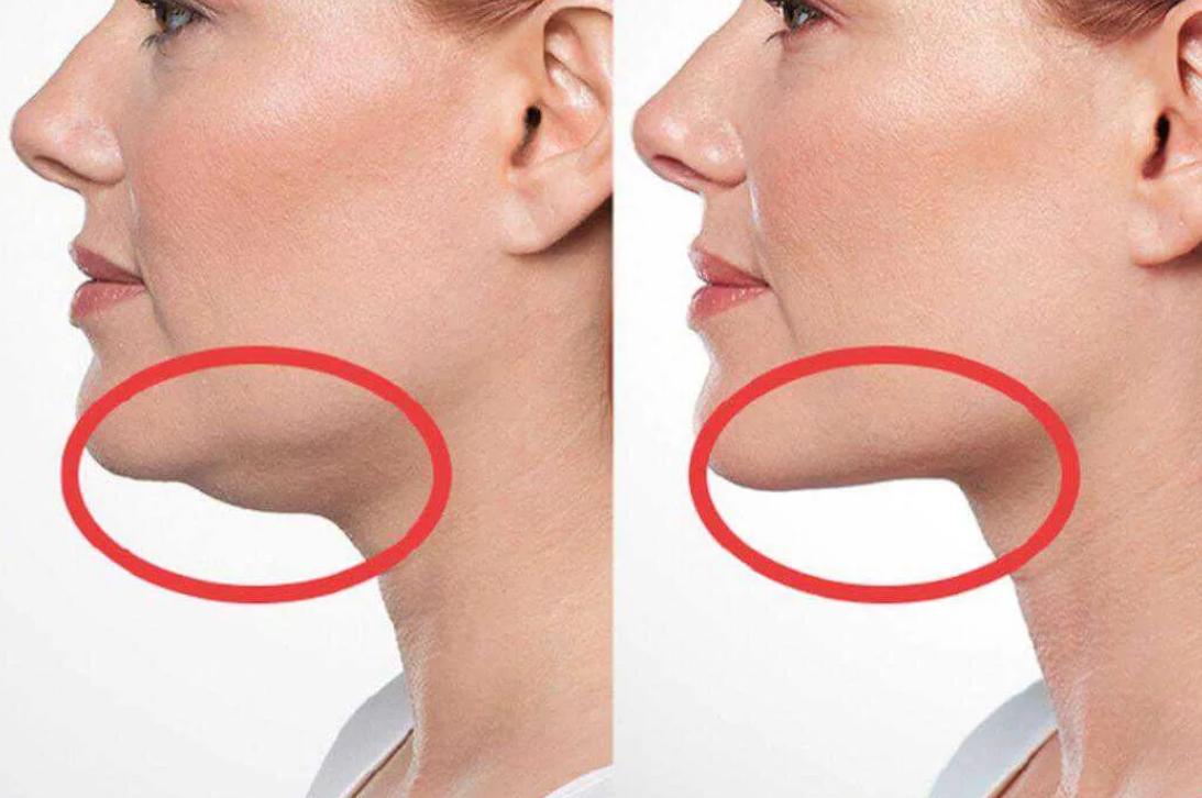 12 способов убрать обвисшие щеки на лице