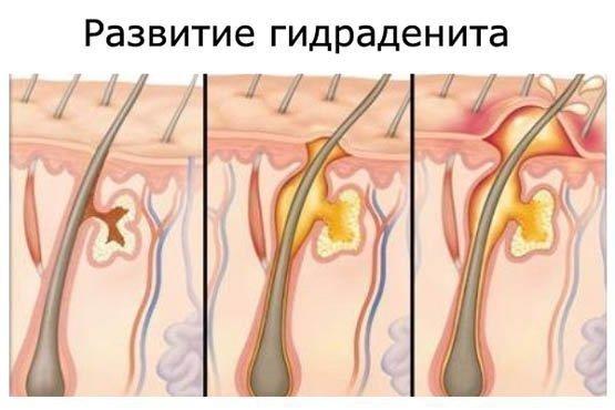 Что такое сучье вымя, симптомы и методы лечения