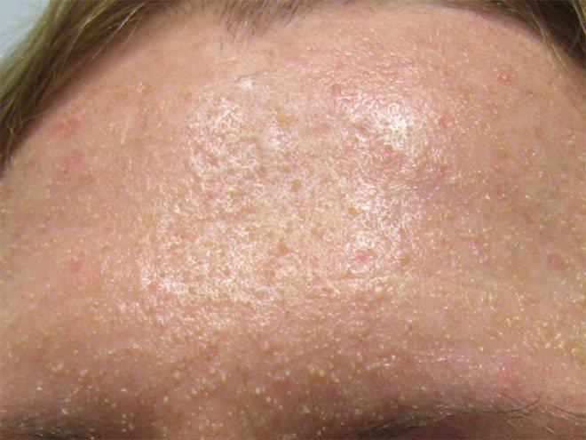 Гиперкератоз - что это такое? виды, симптомы и лечение гиперкератоза