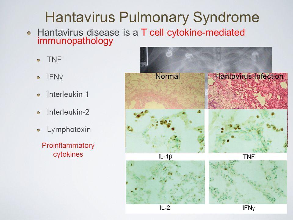 Хантавирус: как предотвратить это передаваемое грызунами заболевание
