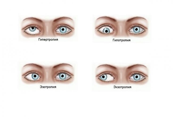 Диплопия - лечение, причины, симптомы, упражнения. диплопия — что это такое
