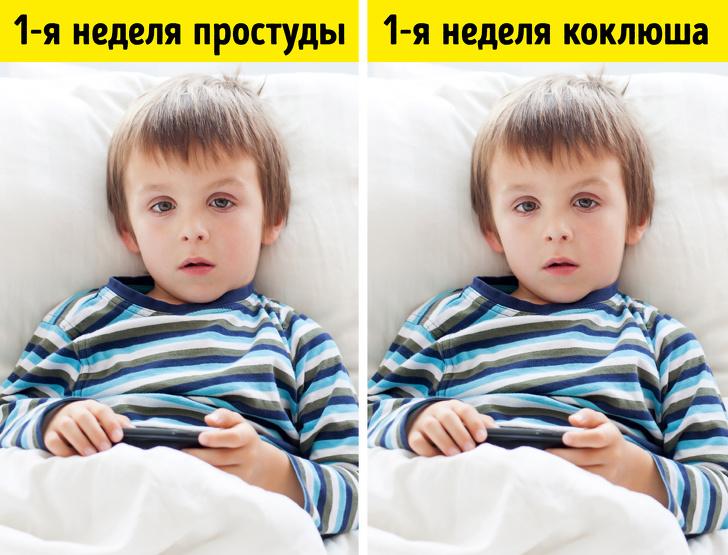 Коклюш шагает по россии: симптомы и лечение у детей и взрослых