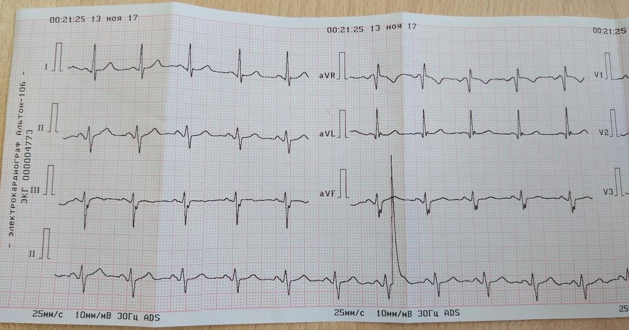 Синдром ранней реполяризации желудочков на экг