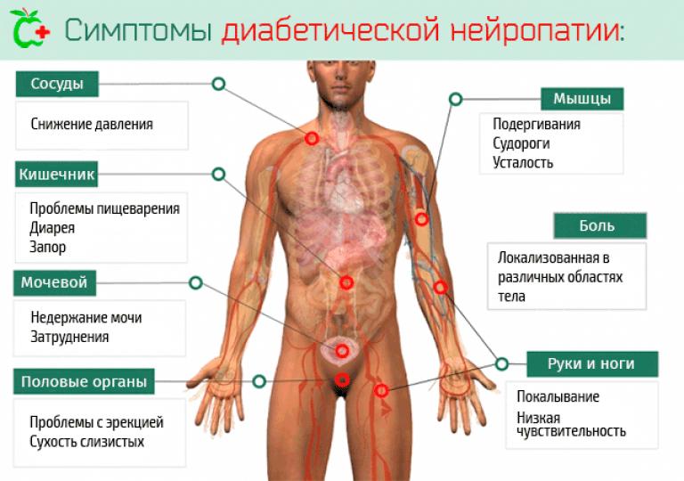 Диабетическая полинейропатия: как лечить при симптомах