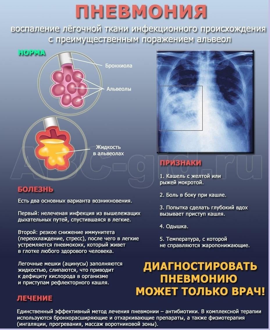 Что такое внебольничная пневмония и как её лечить pulmono.ru что такое внебольничная пневмония и как её лечить