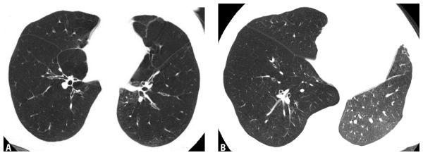 Викарная эмфизема легких