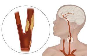 Стенозирующий атеросклероз брахиоцефальных артерий (бца): что это такое, признаки и лечение