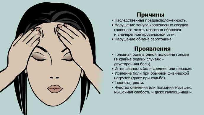 Что такое мигрень? | teva