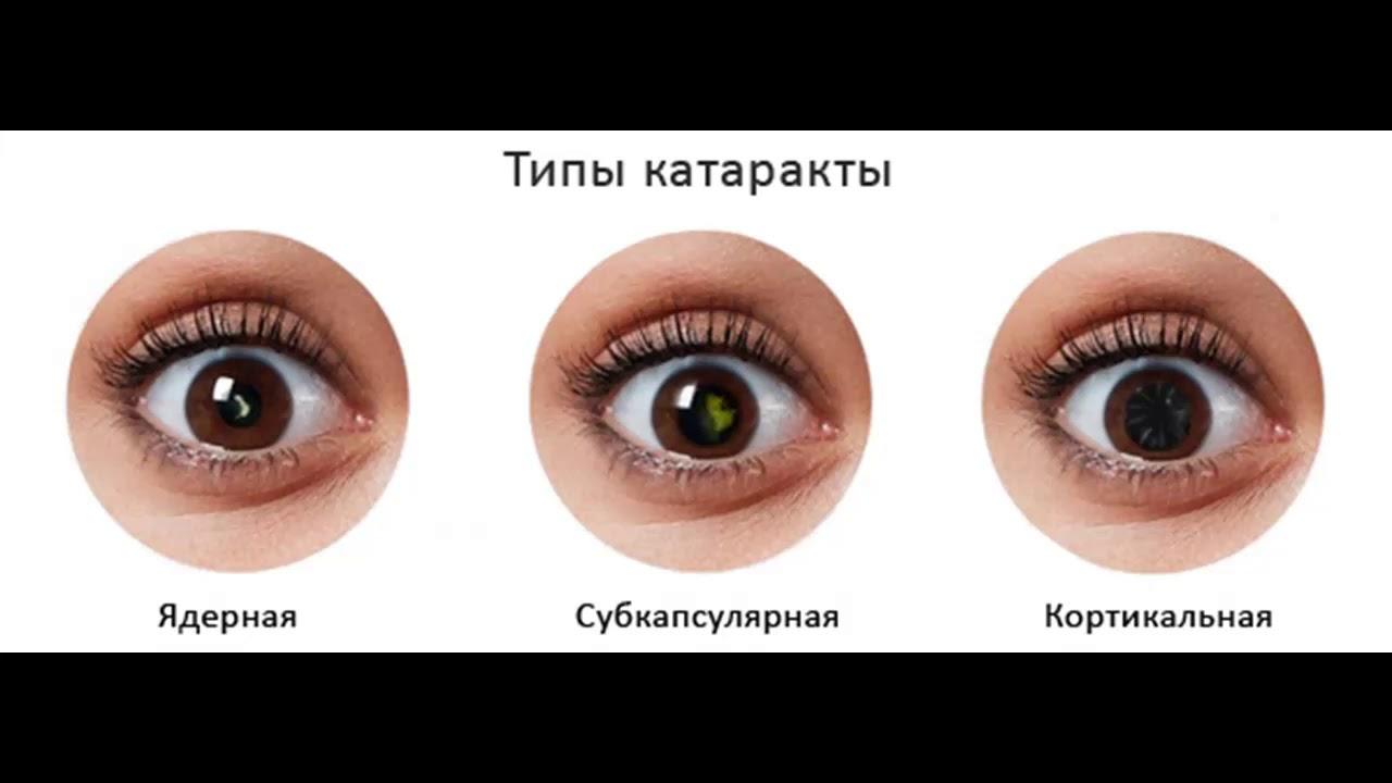 Как начинается катаракта глаза – основные симптомы