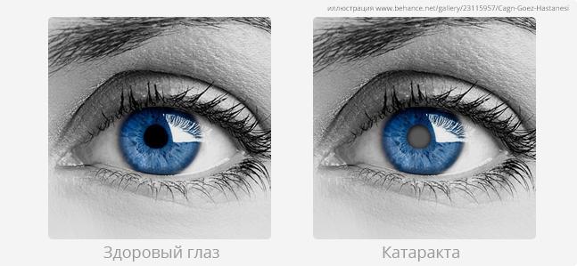 Хрусталик глаза - его функции и особенности строения.