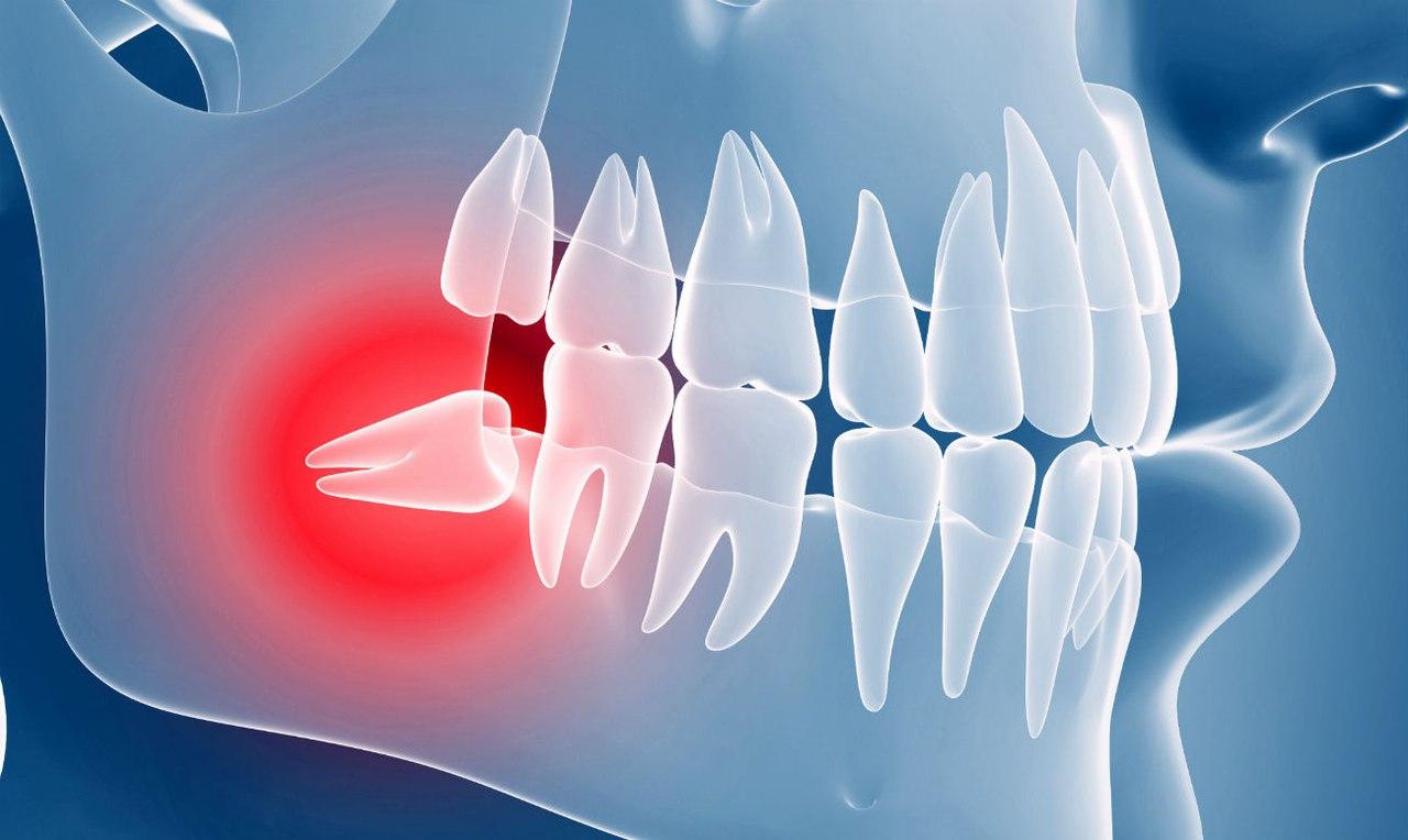 Ретинированный зуб - что это такое и возможные причины возникновения