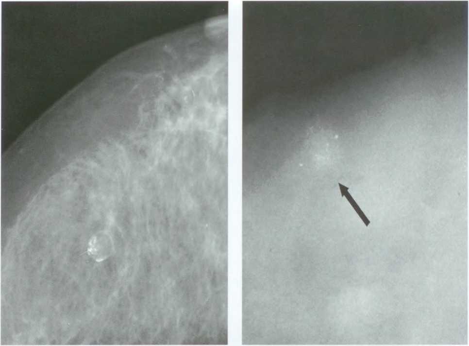 Рак молочной железы кальций - гинеколог