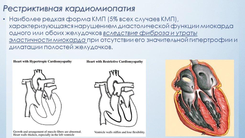 Почему увеличивается сердце в размерах или что такое кардиомегалия