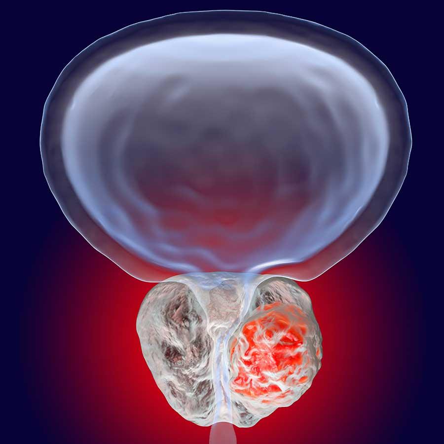 Аденома простаты у мужчин: причины, симптомы и лечение | все о простатите и аденоме